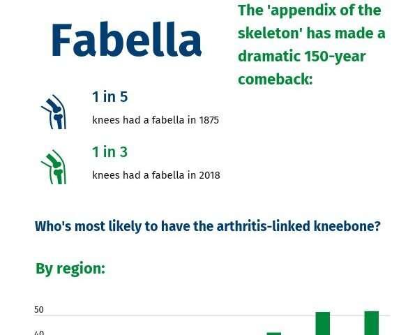 Region, age, and sex decide who gets arthritis-linked 'fabella' knee bone
