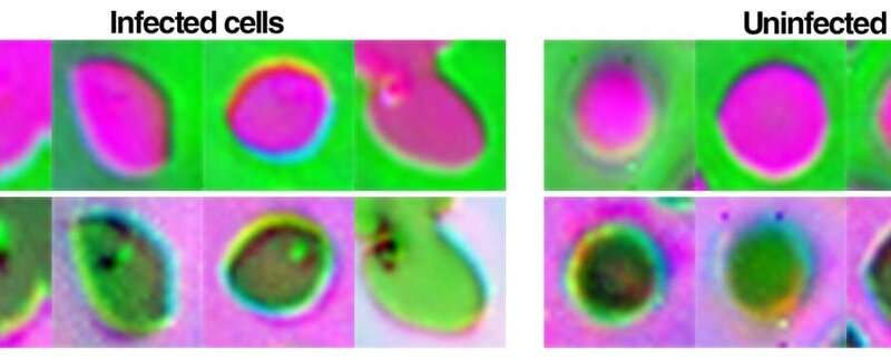 Machine learning microscope adapts lighting to improve diagnosis