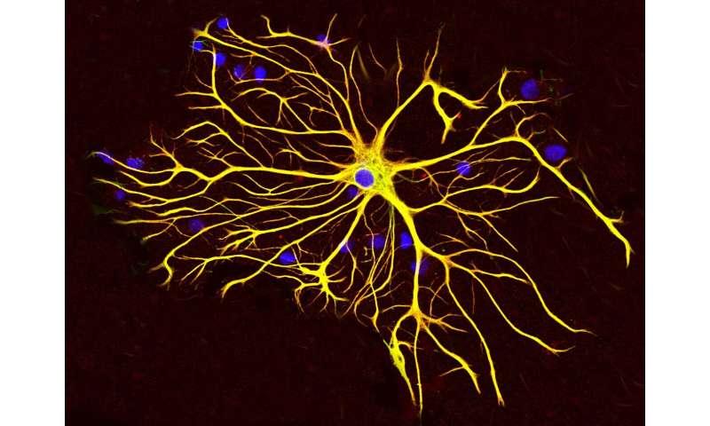 Researchers find regulator of first responder cells to brain injury