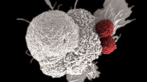 Machine learning finds multiple factors underlie cancer immunotherapy success