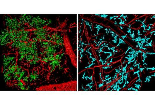 Scientists track brain tumor turncoats with advanced imaging