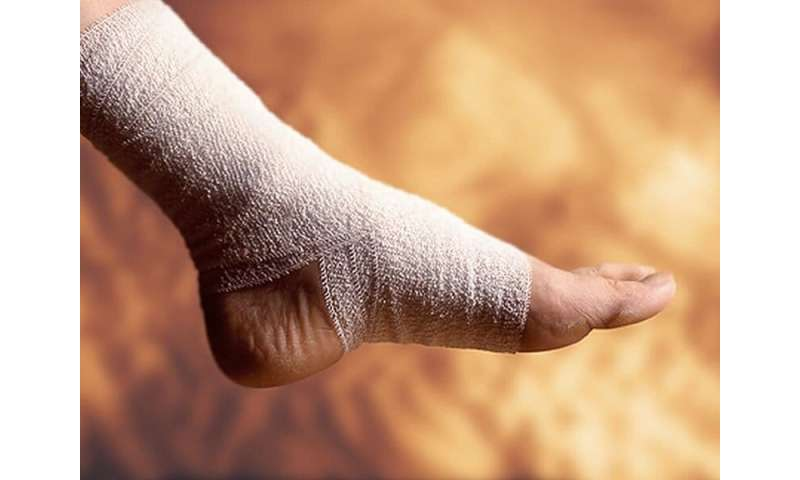 About 12 percent with ankle sprain fill opioid prescriptions