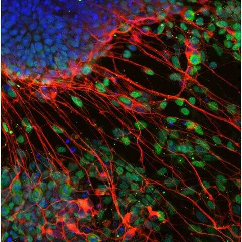 A Freiburg research team deciphers how stem cells decide their identity