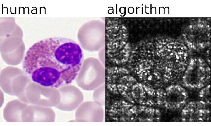 AI-driven single blood cell classification