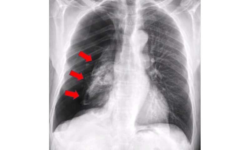 Kollabierte Lunge