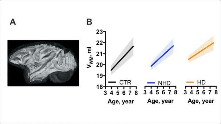 Alcohol drinking slows brain growth in adolescent monkeys