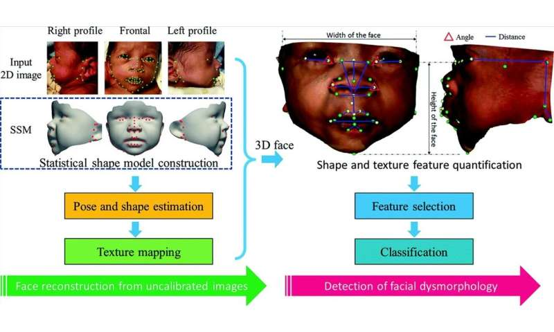 A new facial analysis method detects genetic syndromes with high precision and specificity