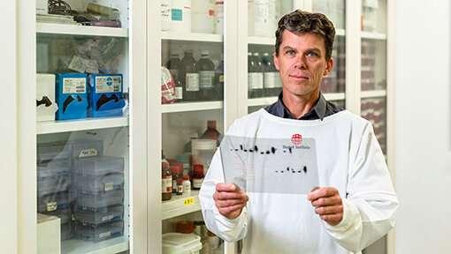 **Antibody's hidden impact in combatting malaria revealed