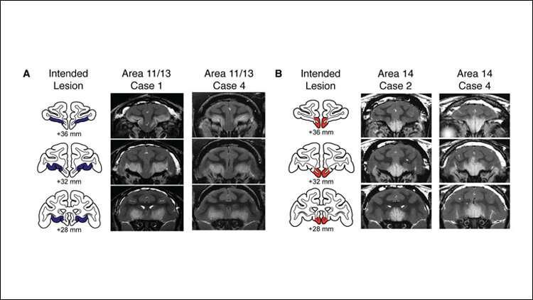 Anxiety-associated brain regions regulate threat responses in monkeys