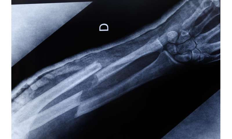 Atomic-level analysis of bone aims to predict and lessen fractures in diabetics