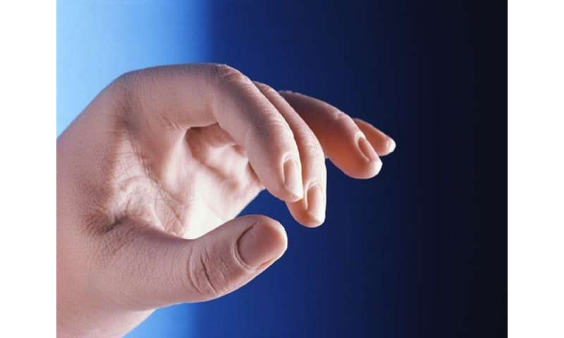 Autoimmune disorders may up risk for carpal tunnel syndrome