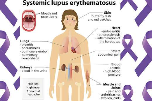 B cells off the rails early in lupus