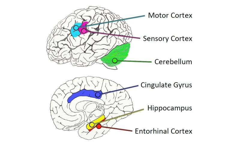 Biggest ever map of human Alzheimer's brain published