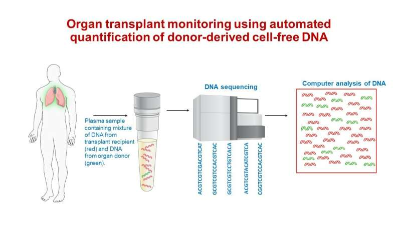 Blood test shows promise for early detection of severe lung-transplant rejection