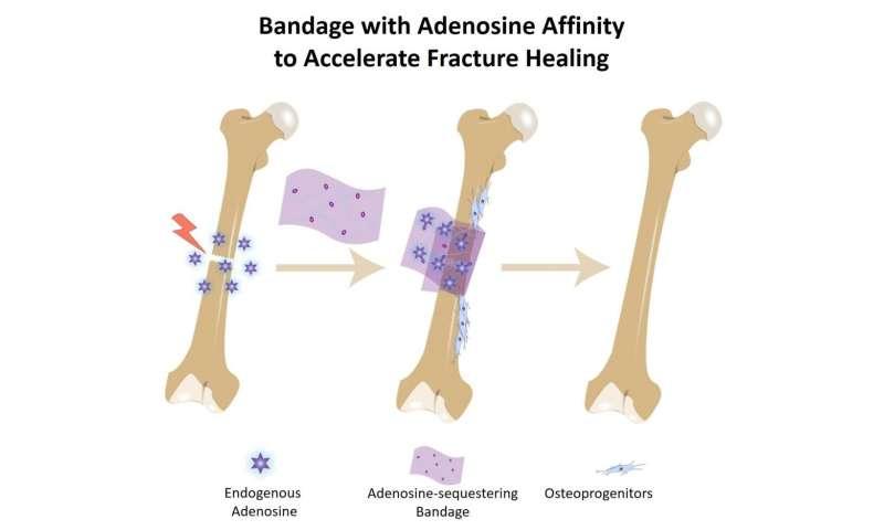Bone bandage soaks up pro-healing biochemical to accelerate repair