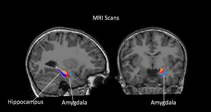 Brain clue signals anxiety, depression in some kids