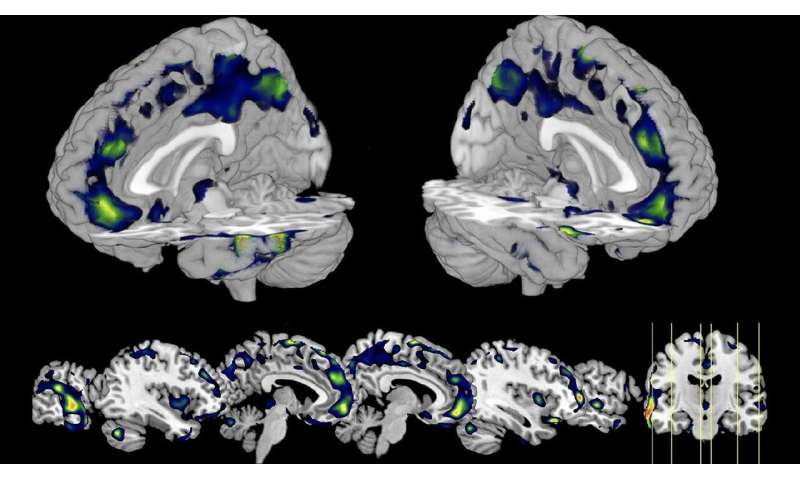 **Brain scans of incarcerated men reveal reduced gray matter in homicide offenders
