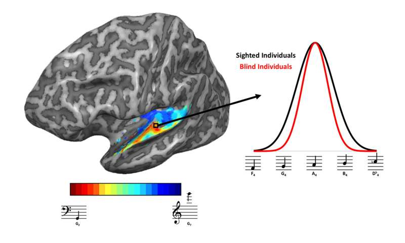 Brains of blind people adapt to sharpen sense of hearing, study shows