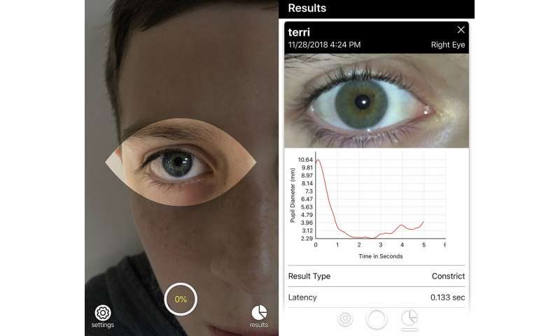 Brightlamp launches smartphone app that can rapidly monitor the brain for signs of concussion