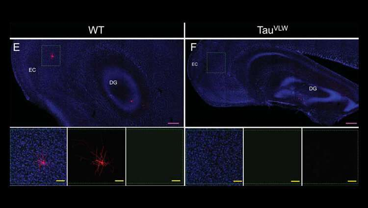 Broken brain cells repaired in dementia mouse model