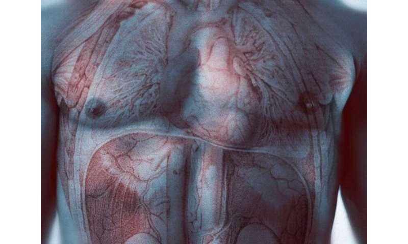 Burden of heart failure-related CVD mortality higher in blacks