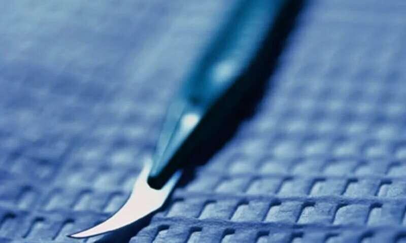 California bill would tighten controls on children's genitalia surgery