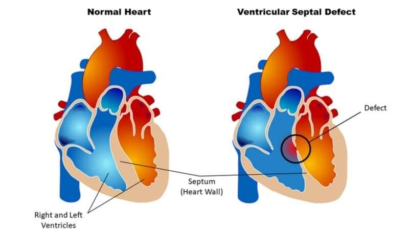 Careful monitoring of children following cardiac surgery may improve long-term outcomes