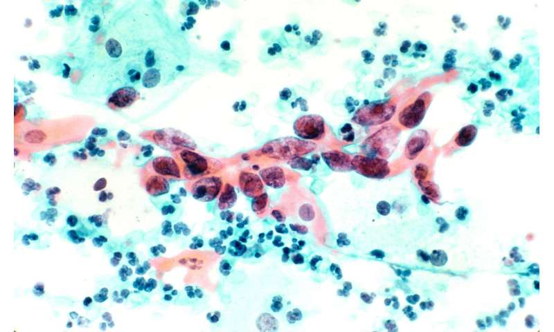 Cervical cancer is more aggressive when human papillomavirus is not detected