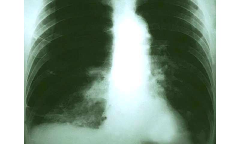 Childhood TB shot may offer long-term protection from lung cancer