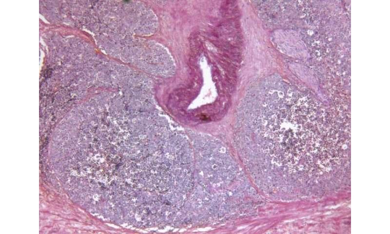 Darolutamide slows spread of castration-resistant prostate cancer