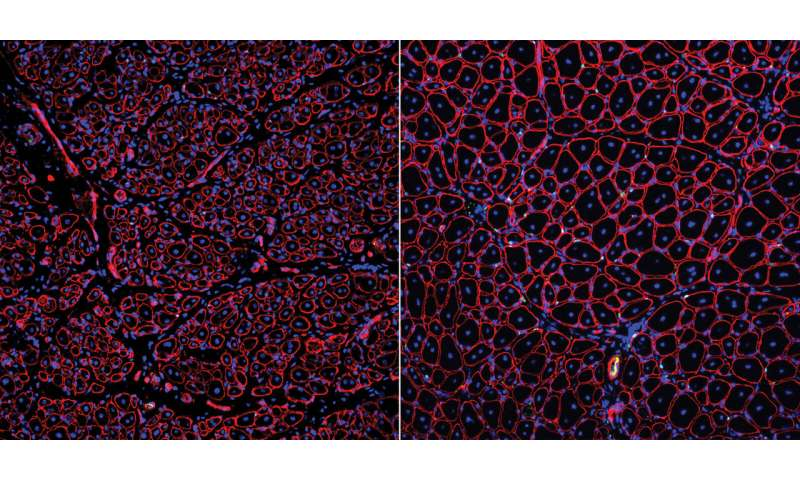 Discovered: Possible therapeutic target for slow healing of aged muscles