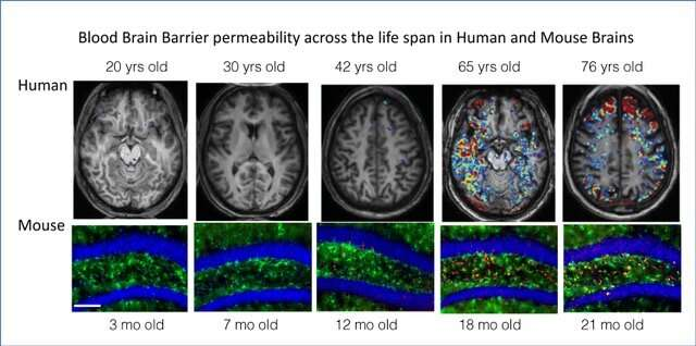 Drugs that quell brain inflammation reverse dementia