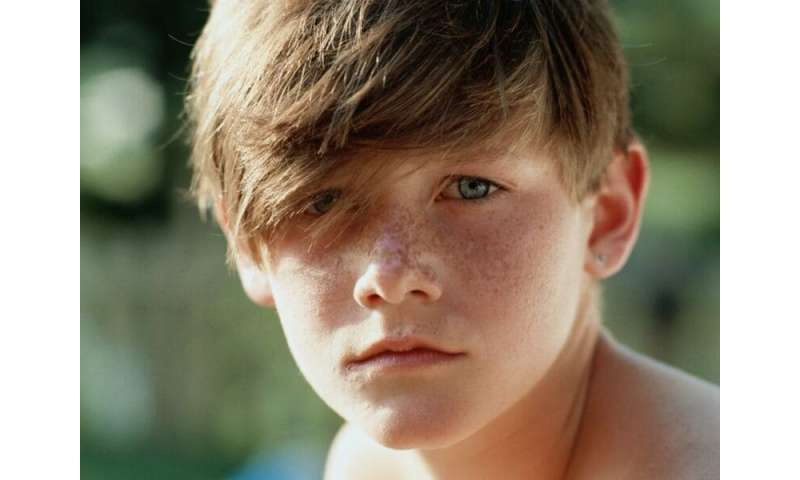 Earlier puberty in swedish boys only partially due to higher BMI