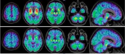 Early biomarker found for degenerative neurologic disease