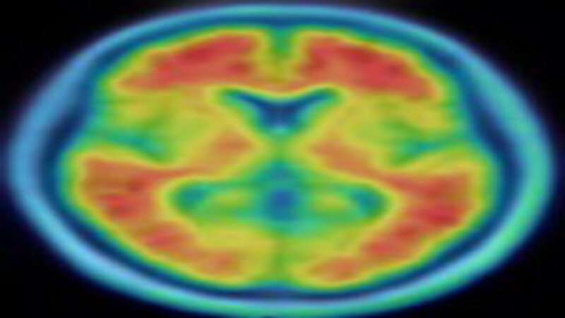 Education, intelligence may protect cognition, but don't prevent Alzheimer's disease