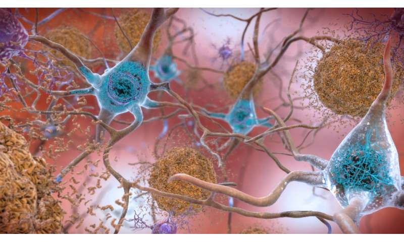Exercise could slow withering effects of Alzheimer's