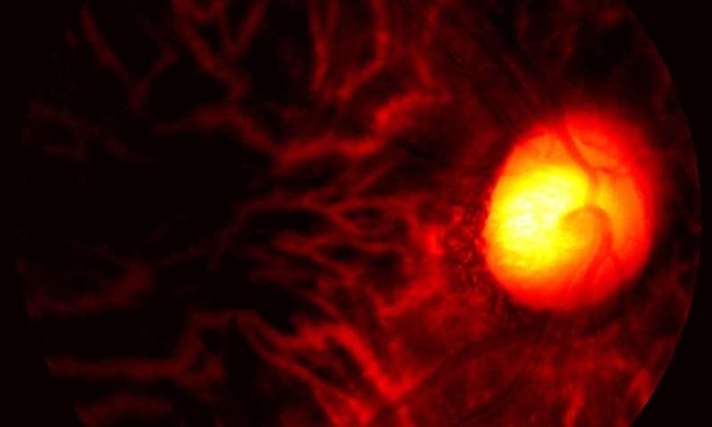 Eye scan sheds new light on Alzheimer's disease