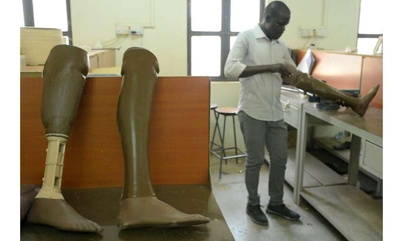 Finished prosthetic limbs