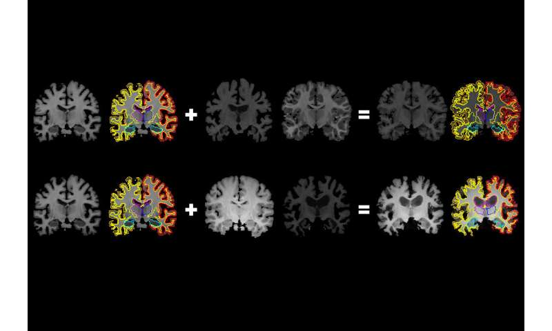 From one brain scan, more information for medical artificial intelligence
