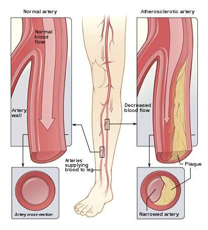 Genetic characteristics of peripheral artery disease