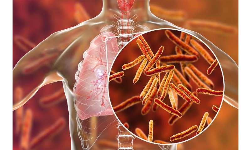 Harvard undergrad's AI model helps to predict TB resistance