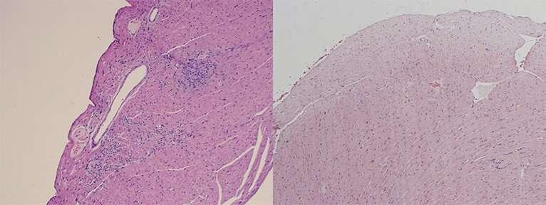 How common gut bacteria trigger a lethal autoimmune disease