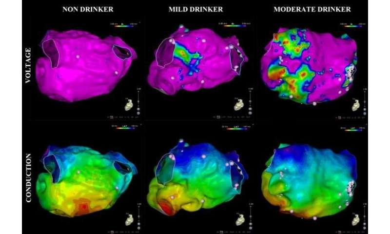 How much is too much? Even moderate alcohol consumption is a risk factor for atrial fibrillation