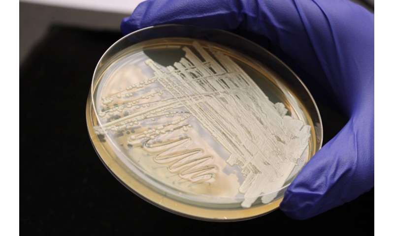 How to make better biofuels? Convince yeast it's not starving