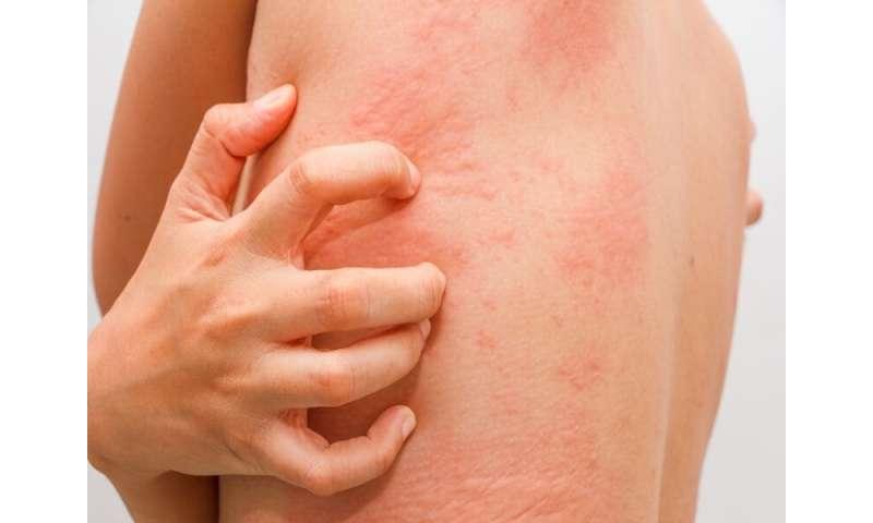 Ligelizumab safely, effectively treats hives