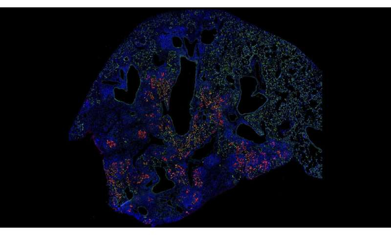 Lung cell transplant boosts healing after the flu in mice