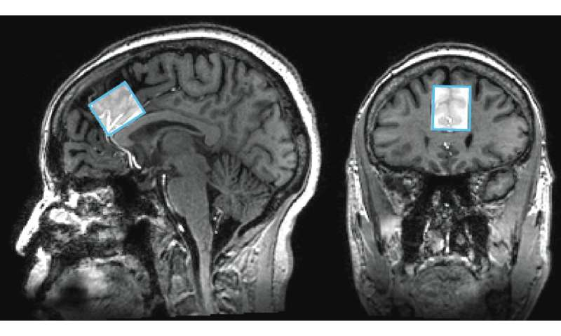 Measuring differences in brain chemicals in people with mild memory problems
