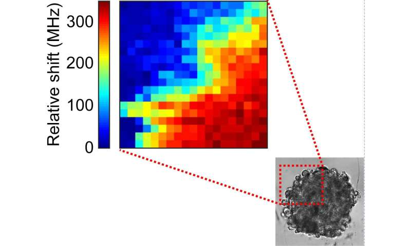 Mechanical properties of tumors measured by Brillouin light scattering