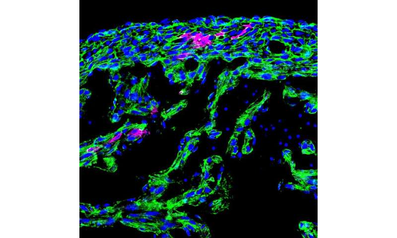 Mending broken hearts with neural crest cells