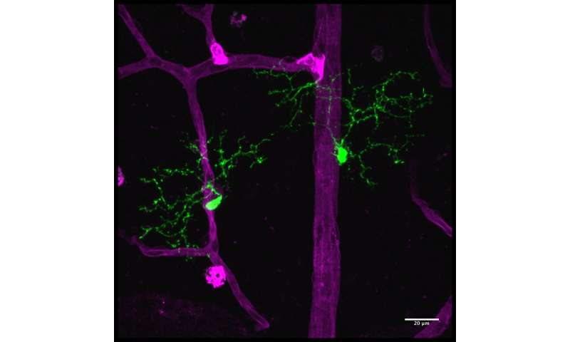 Microglia, immune cells of the central nervous system, shown to regulate neuroinflammation